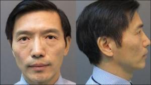 Dr. Haohua Yang of Naperville, Illinois